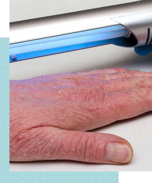 Systemic Laser Light Therapy